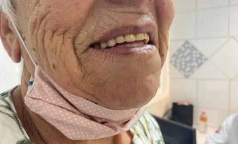 Prefeitura de Cocal do Sul realiza mutirão de prótese dentária