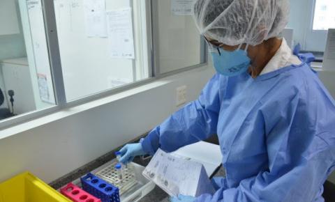 Criciúma registra mais um caso positivo para COVID-19